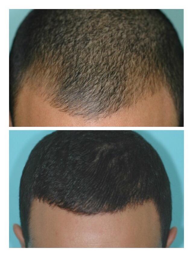 Trasplante de pelo con FUE