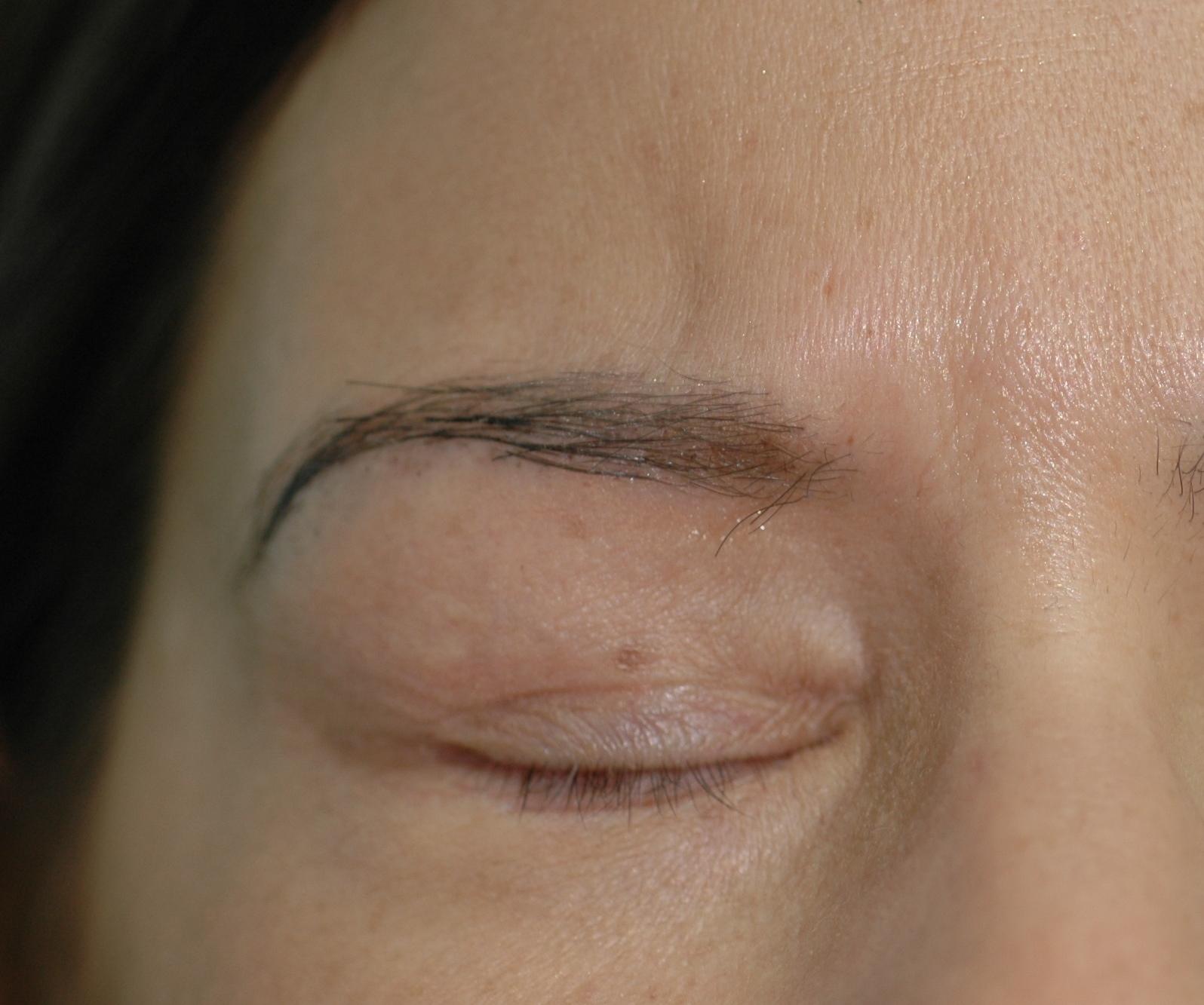 Trasplante de pelo en ceja, natural y duradero