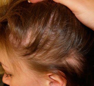 Espironolactona en la alopecia androgenética femenina