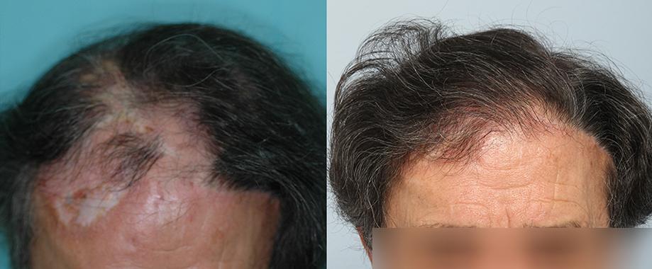Trasplante en alopecia por cicatriz