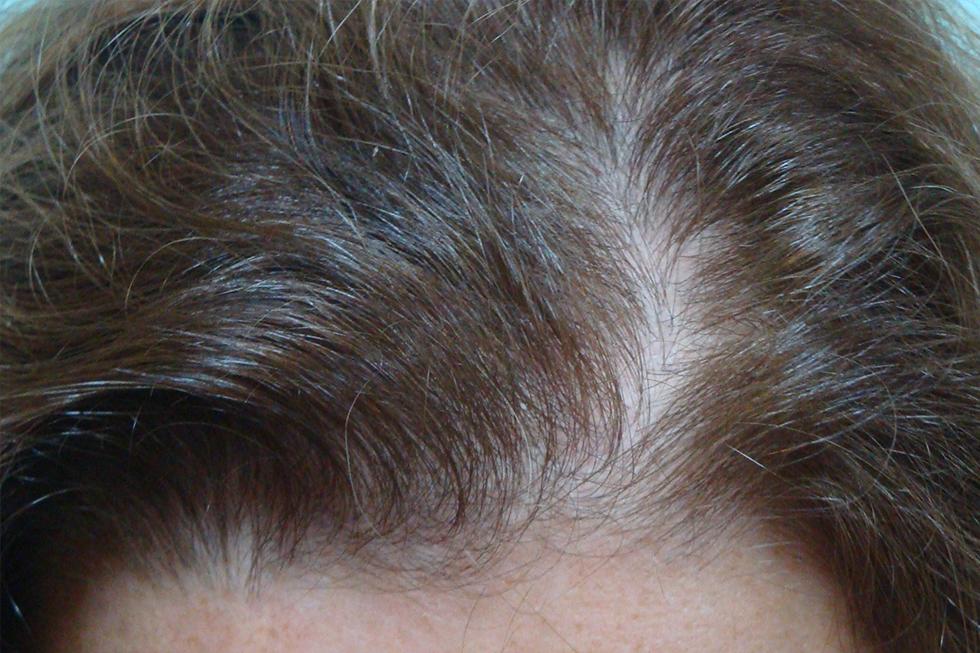 alopecia-frontal-leve1