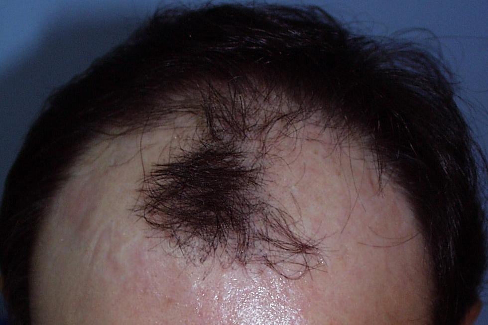 alopecia-avanzada-en-hombre-joven-antes