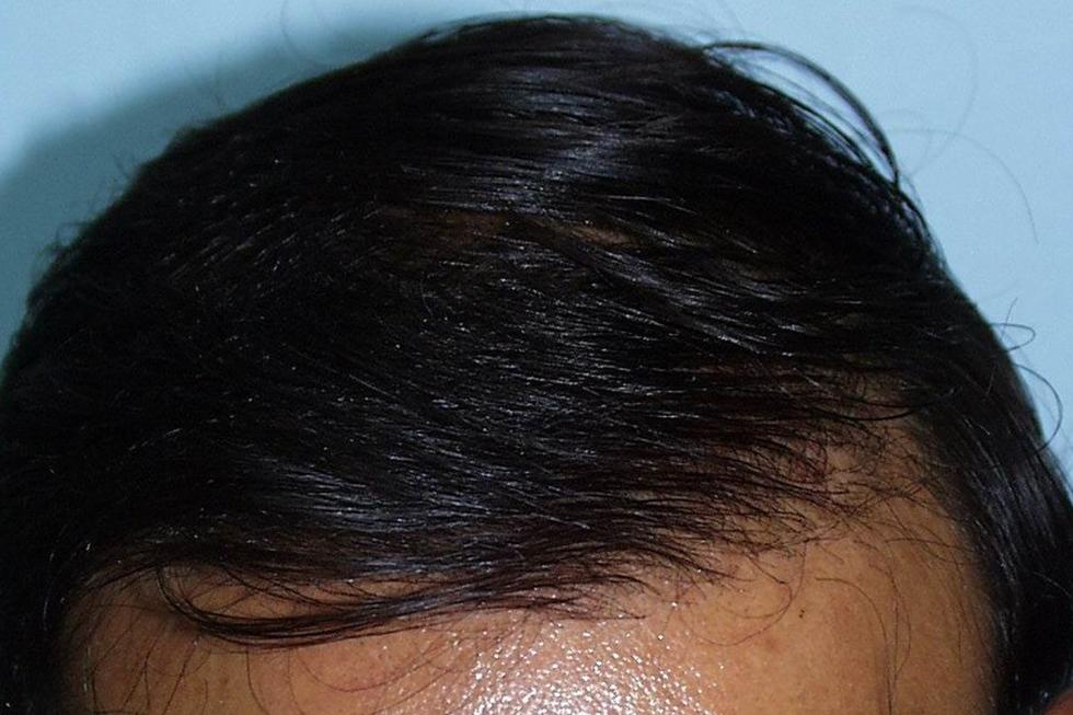 alopecia-avanzada-en-hombre-joven-despues