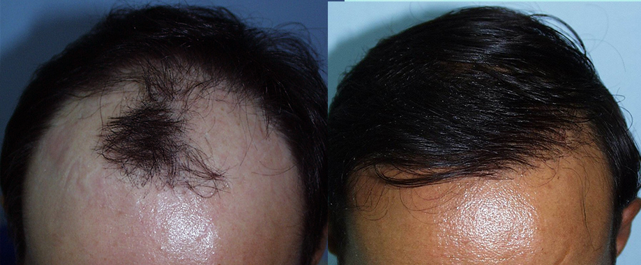 Alopecia avanzada en hombre joven