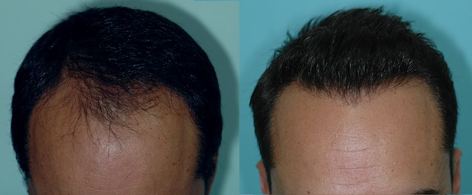 Frontal male pattern baldness