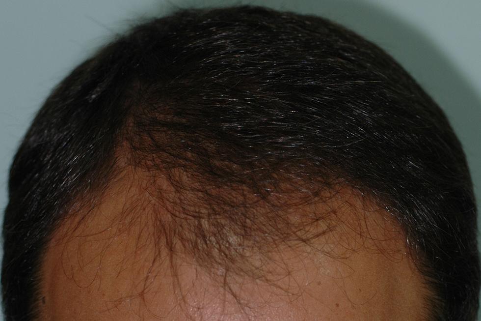 alopecia-frontal-varon-1