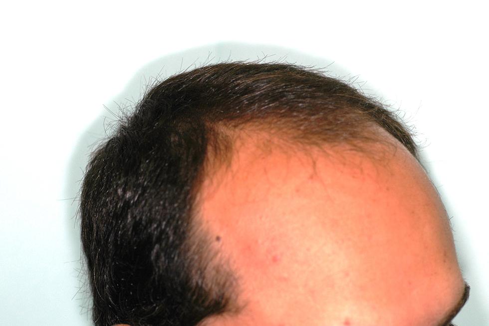 alopecia-frontal-varon-2