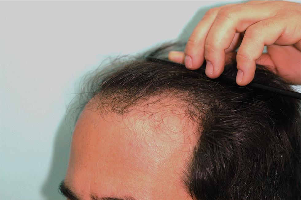 Alopecia-localizada-en-linea-frontal-antes
