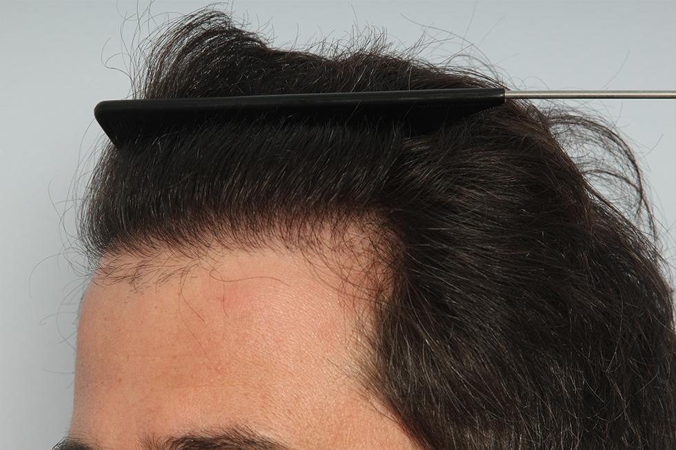 Alopecia-localizada-en-linea-frontal-despues