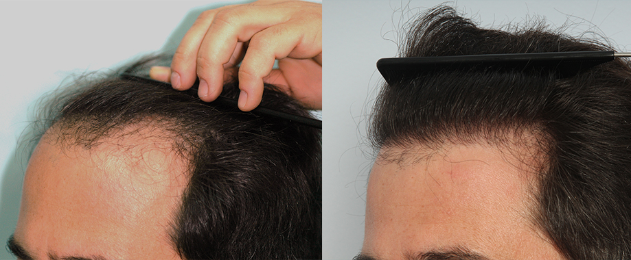 Localised hair loss along the frontal hairline