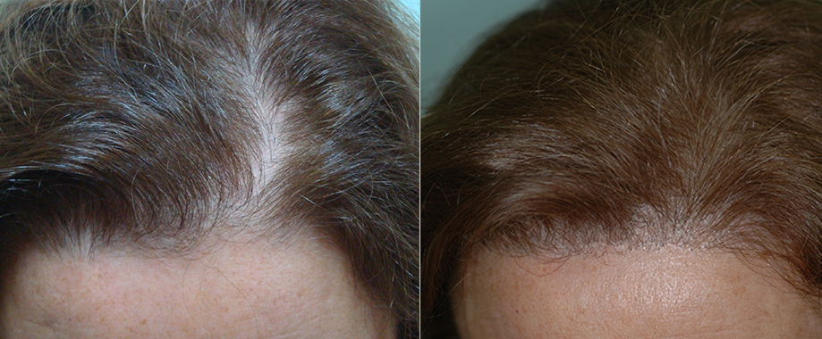 Mujer con alopecia frontal leve
