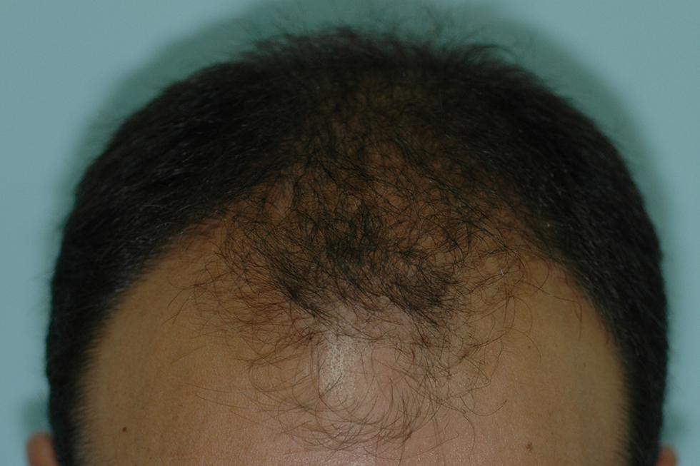 FUE-FUT-y-progresion-de-la-alopecia-antes