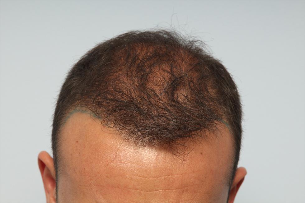 FUE-FUT-y-progresion-de-la-alopecia-despues