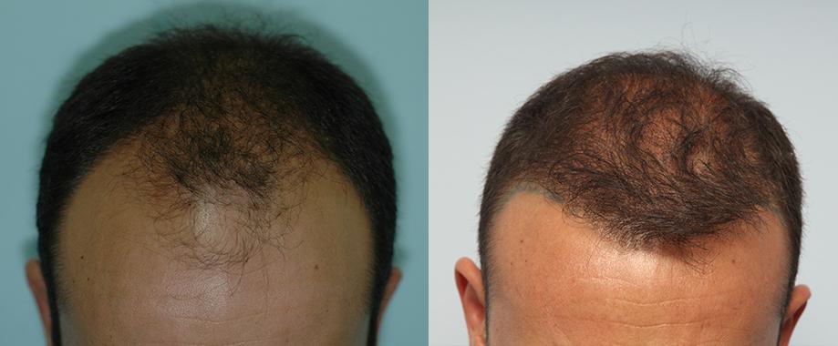 FUE, FUT y progresión de la alopecia