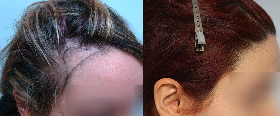 Lowering frontal hairline and covering recessions in a female patient