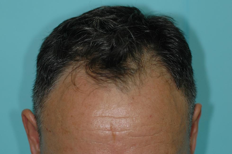 trasplante-en-alopecia-androgenetica-frontal-antes