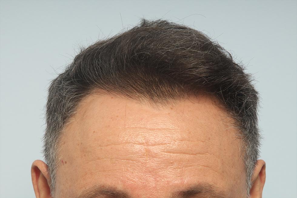 trasplante-en-alopecia-androgenetica-frontal-despues