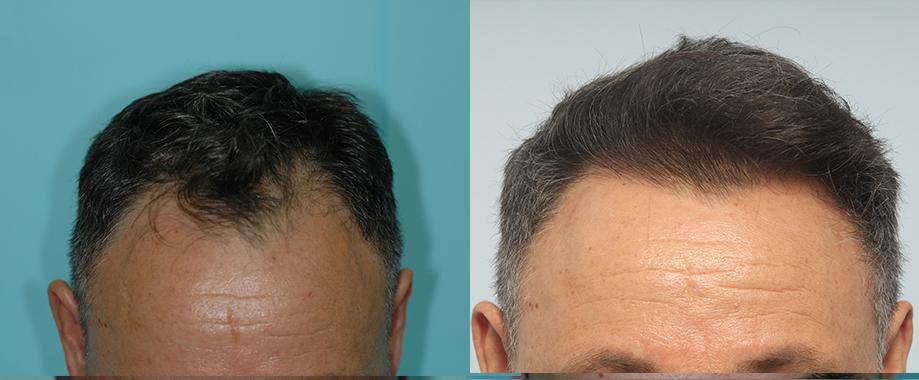 Trasplante en alopecia androgenética frontal
