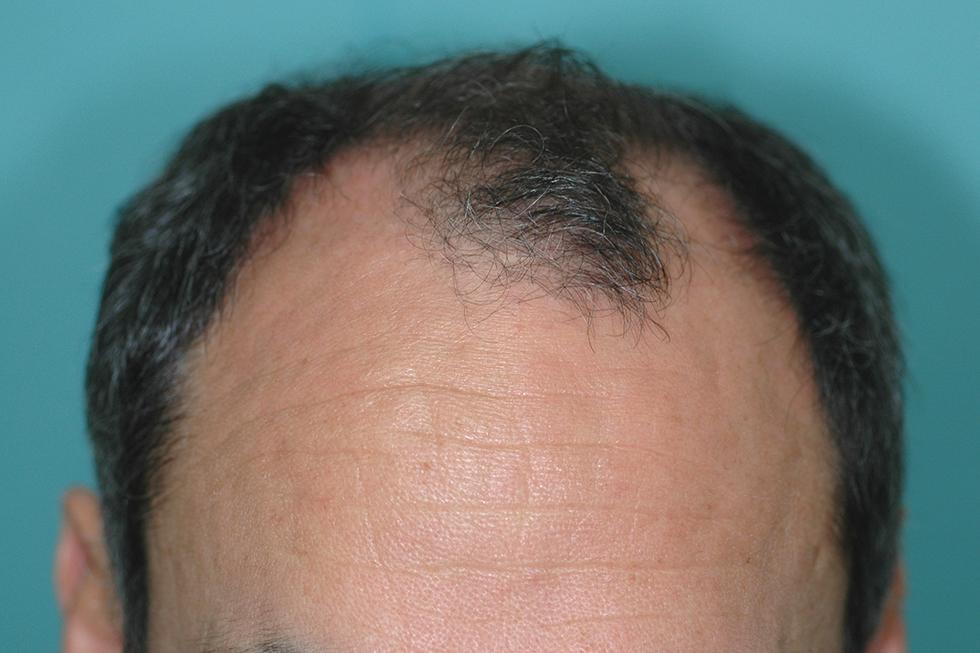 trasplante-en-alopecia-avanzada-antes