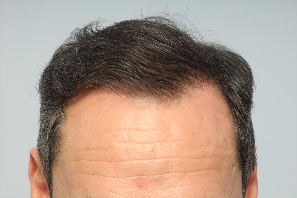 trasplante-en-alopecia-avanzada-despues