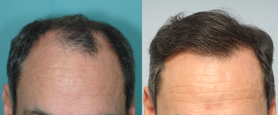 Hair transplant for advanced alopecia