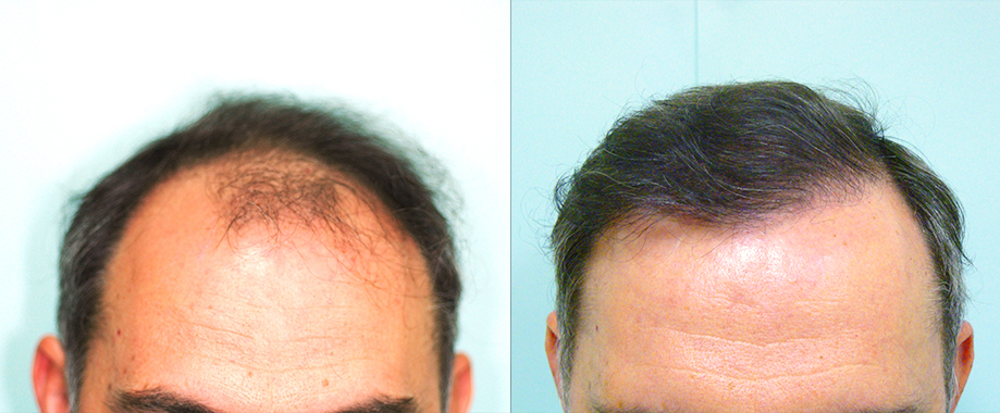 Trasplante en alopecia frontal y parietal