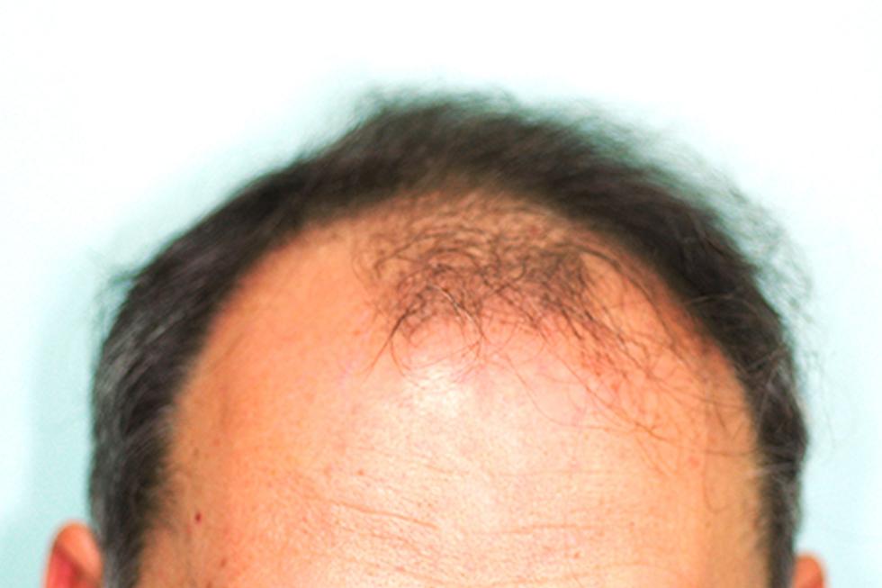 trasplante-en-alopecia-frontal-y-parietal-antes1