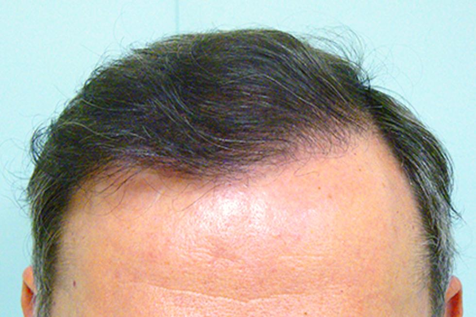 trasplante-en-alopecia-frontal-y-parietal_antes