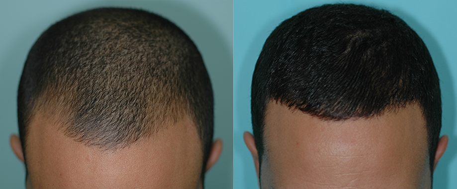 Transplant for young man with receding hairline