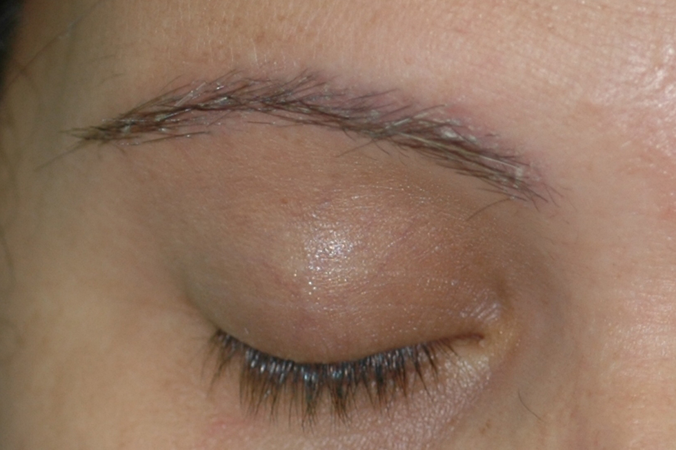 alopecia-frontal-filo-despues