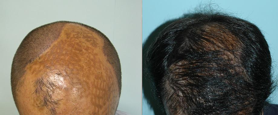 Alopecia por quemadura