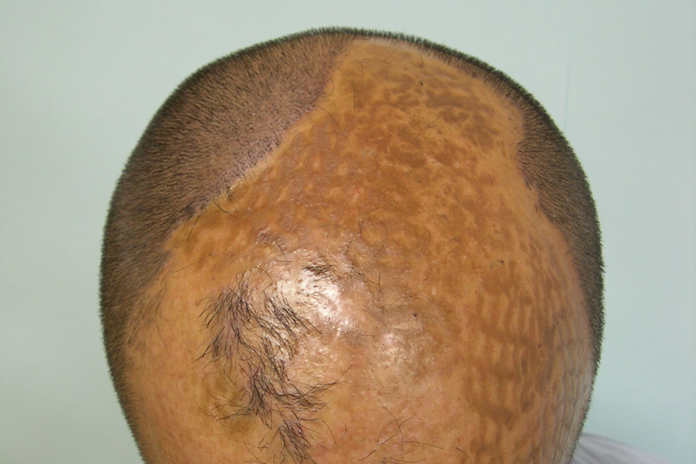 alopecia_por_quemadura_antes