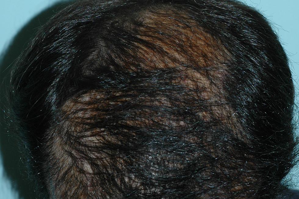 alopecia_por_quemadura_despues