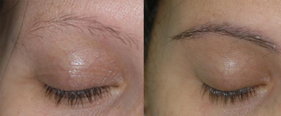 Trasplante de ceja en Alopecia Frontal Fibrosante
