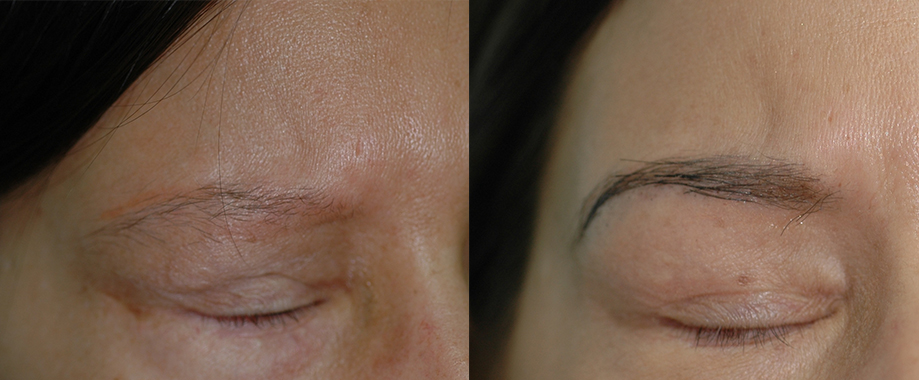 Eyebrow transplant for radiotherapy-induced scarring