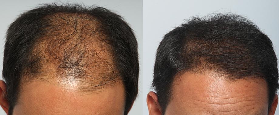 FUE en paciente con alopecia androgenética avanzada