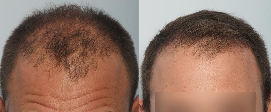 FUE en cicatriz y alopecia androgenetica