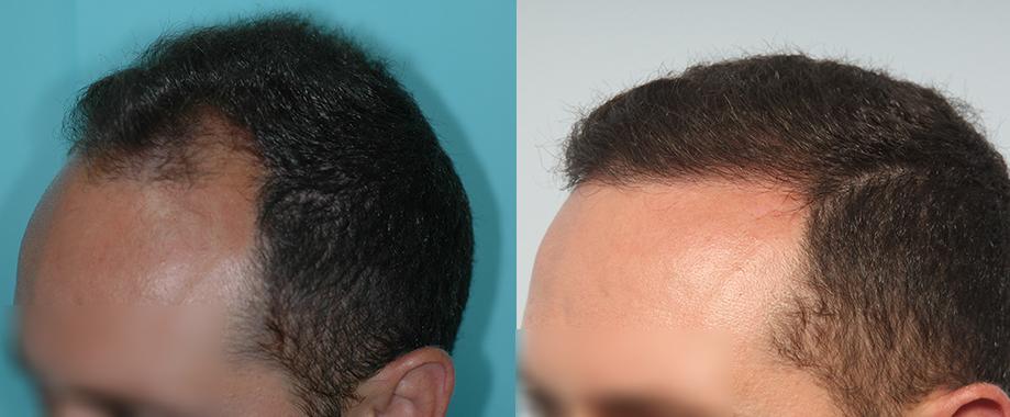 Trasplante en joven con alopecia y antecedentes familiares