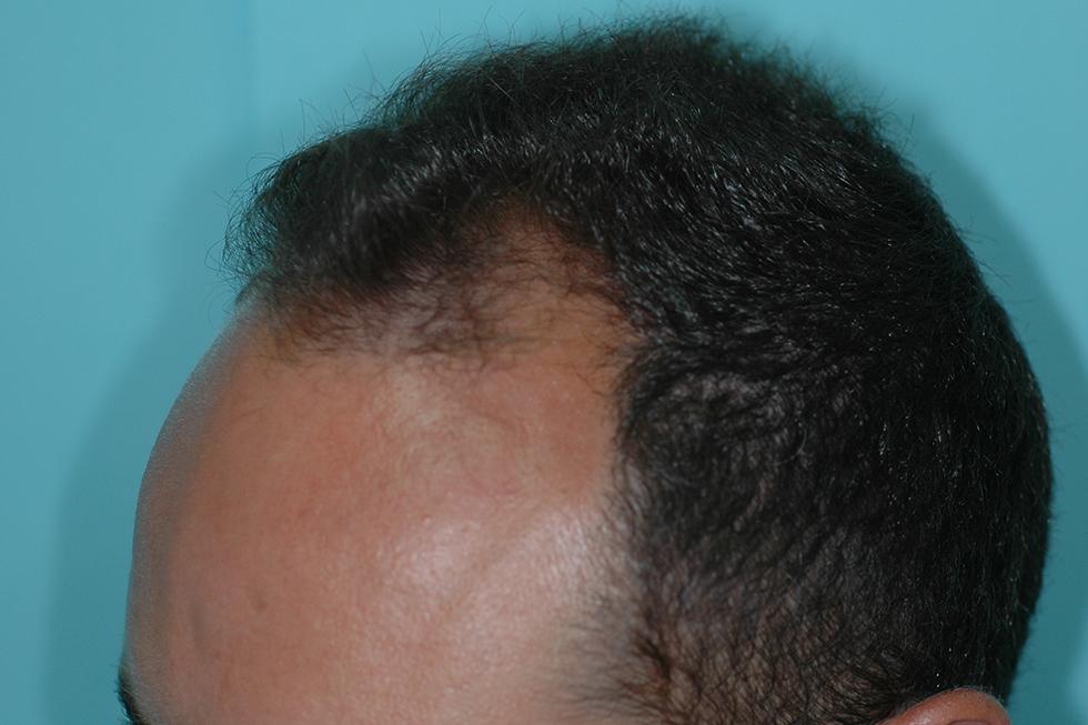 trasplante-joven-con-alopecia-y-antecedentes-familiares_antes