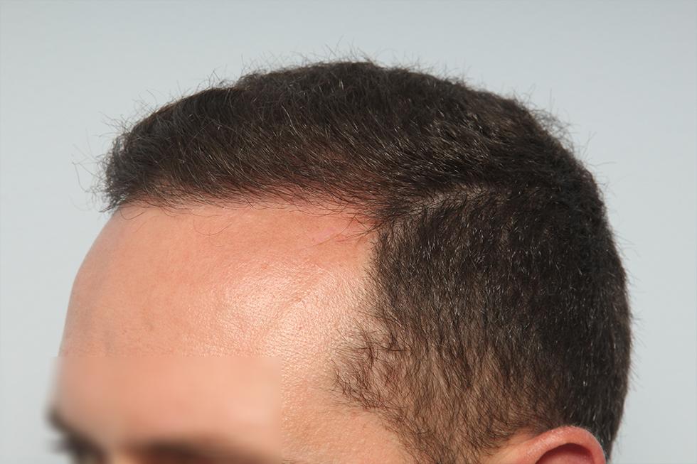 trasplante-joven-con-alopecia-y-antecedentes-familiares_depues
