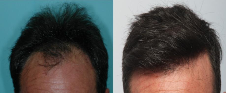 FUT y FUE en paciente varón con Alopecia Frontal Androgenética