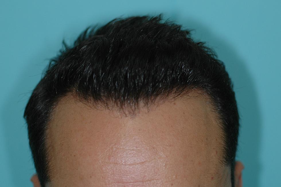 Alopecia-frontal-varon-3