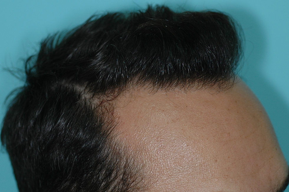 Alopecia-frontal-varon-4