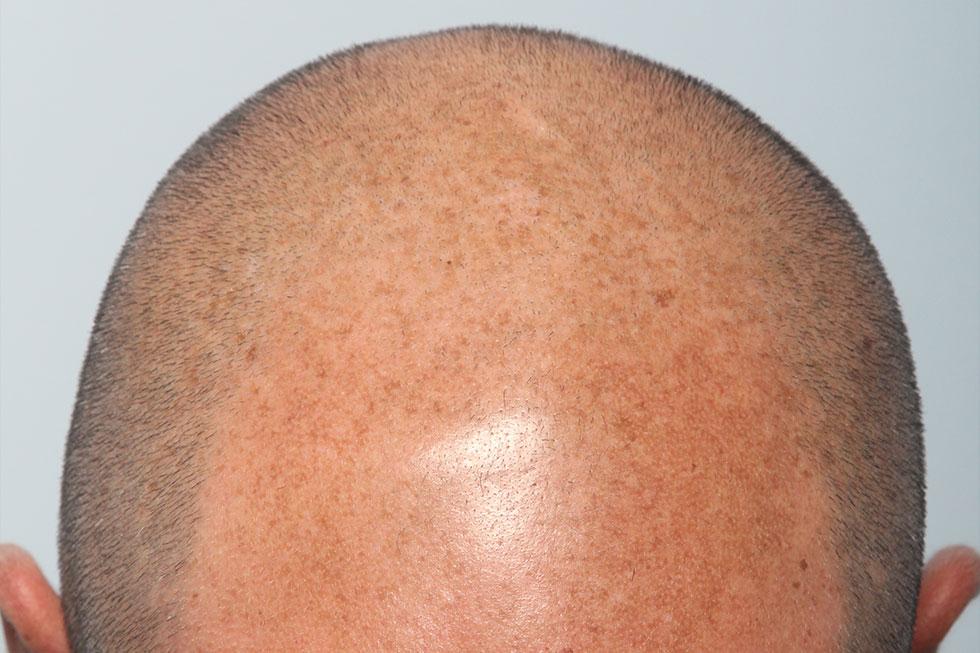 FUE-alopecia-avanzada-antes