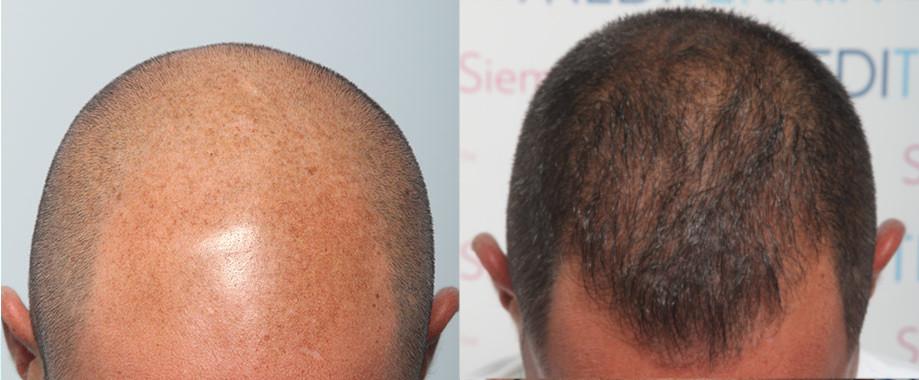 FUE en Alopecia Avanzada