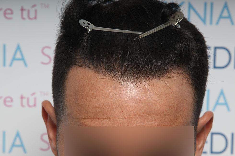 Trasplante-Joven-con-alopecia-y-antecedentes-familiares_despues