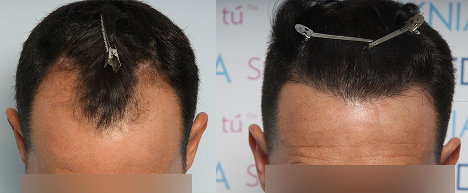 Transplant for hairline recessions with FUE