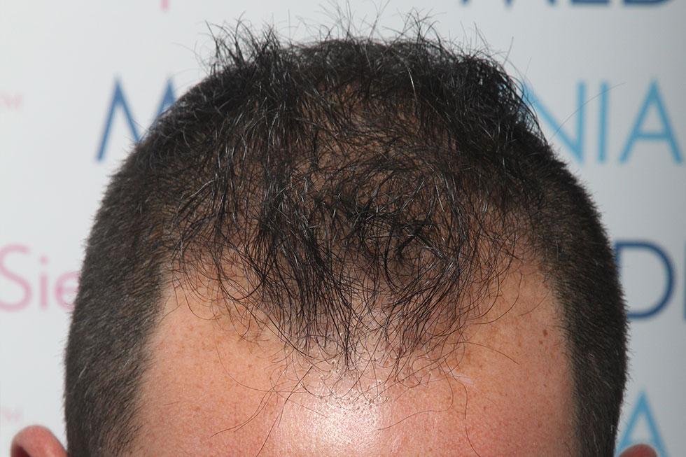 fue-alopecia-avanzada-despues