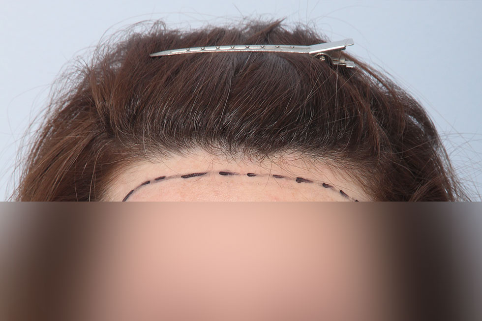 cabello putas de la linea