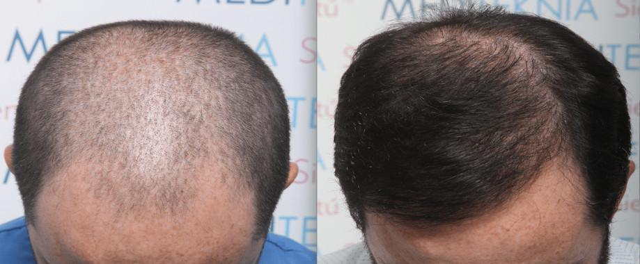 FUE en alopecia androgenética con tratamiento médico asociado